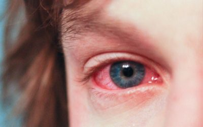 Why Smoking Cannabis Causes Red Eyes